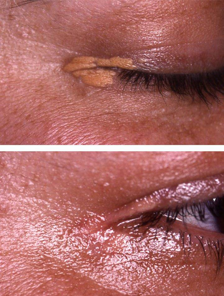 xanthelasma removal 2