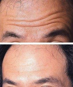 Line and Wrinkle Treatment